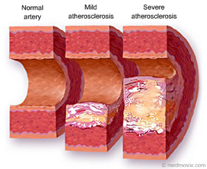 روشهای موثر کاهش کلسترول خون