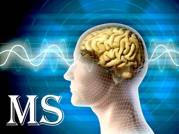 عوامل بیماری MS