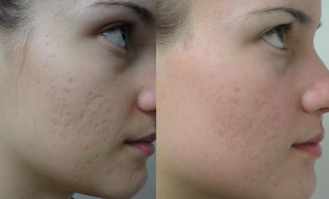 روش جدید جوانسازی پوست