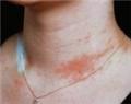 حساسيت پوستي
